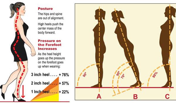 Giày cao gót và những hệ lụy về sức khỏe - 1