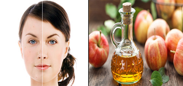 apple cider vinegar as a facial toner
