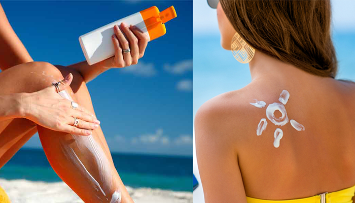 Instant relief from sunburn