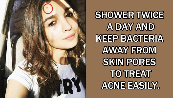 5 Amazing Tips That Can Help You Avoid Acne This Summer And Enjoy Clear And Healthy Skin
