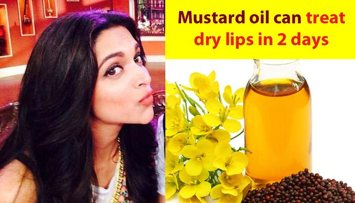 15 Benefits Of Mustard Oil For Hair, Skin And Health Which You Were Definitely Unaware Of