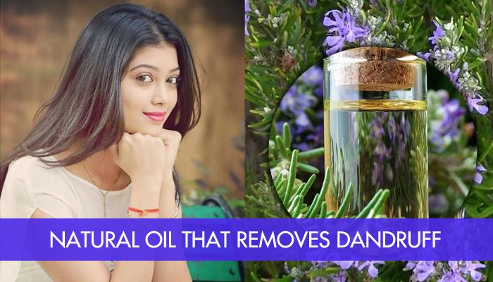How To Get Beautiful Dandruff Free Hair In Just 4 Weeks