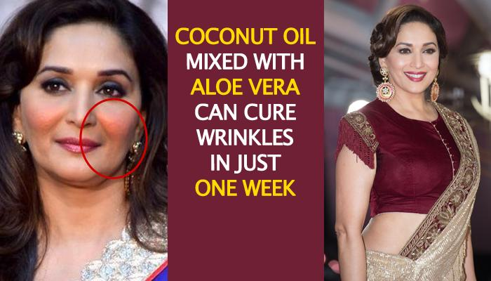 10 Effective Home Remedies To Treat Wrinkles Using Coconut Oil