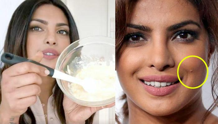 8 Surprising Beauty Benefits Of Curd For Problem Free Skin And Hair