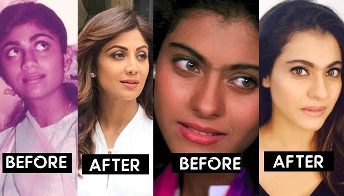 Dusky Bollywood Divas Who Opted For Skin Lightening Treatment And Got Complete Makeover