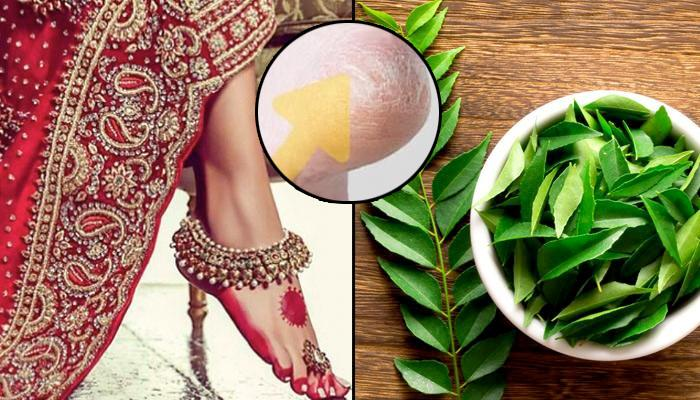 6 Best Tips For Treating Cracked Heels Using Home Remedies