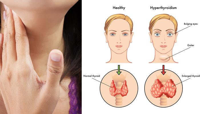 Thyroid Symptoms, Causes And Effective Home Remedies: Everything You Need To Know About It