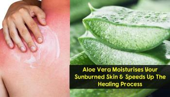 15 Simple Things You Can To Do Get Instant Relief From Sunburn