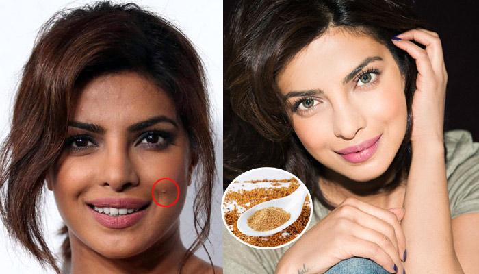 20 Home Remedies To Get Rid Of Pimples And Acne Naturally