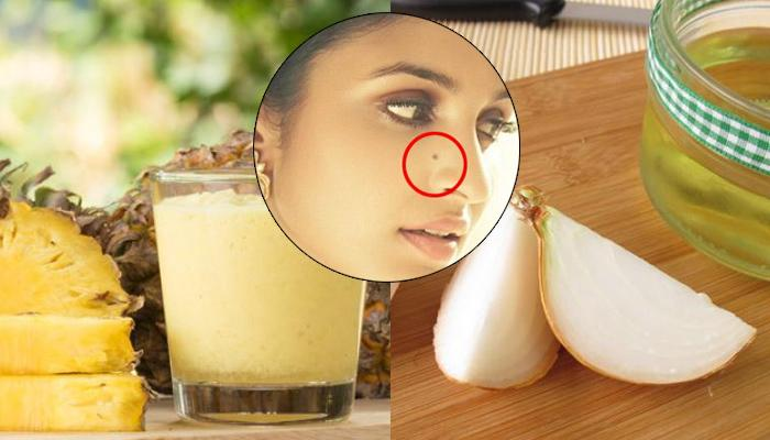 Best Home Remedies To Remove Moles Naturally From Face Without Any Surgery