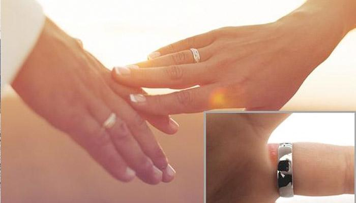 Everything You Must Know About Engagement Or Wedding Ring Allergy