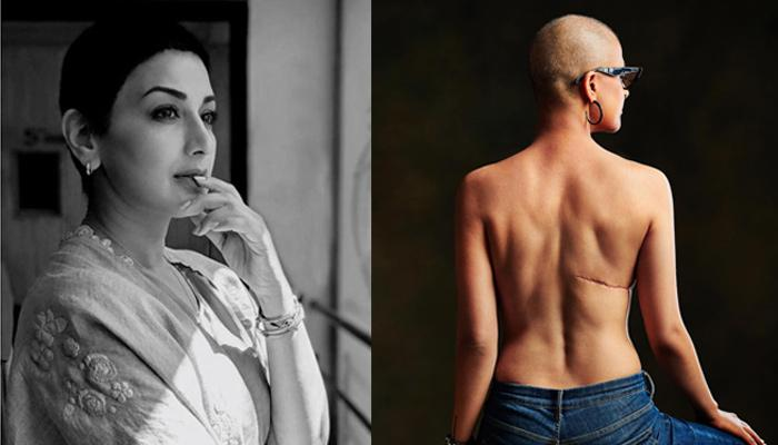Tahira Kashyap And Sonali Bendre Share Awe-Inspiring Messages And Pictures On World Cancer Day