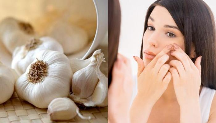 17 Unknown Beauty Benefits Of Garlic (Lahsun) For Hair, Skin And Health